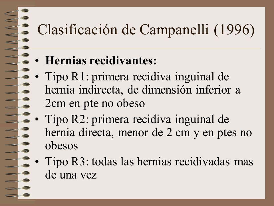 Clasificación de Campanelli (1996)