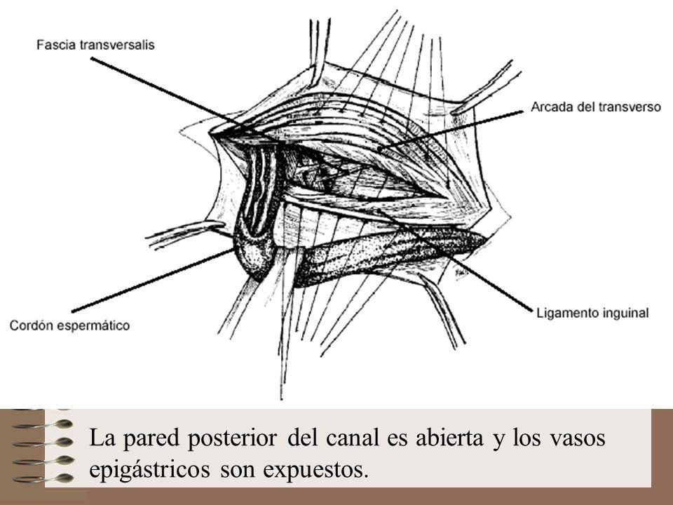 La pared posterior del canal es abierta y los vasos epigástricos son expuestos.