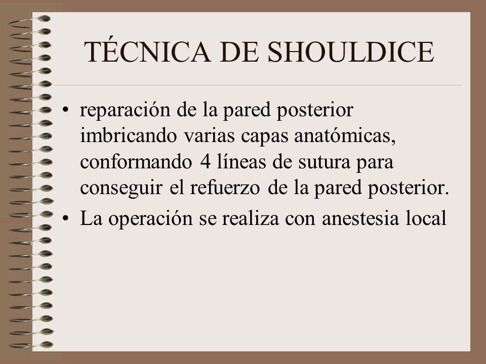 TÉCNICA DE SHOULDICE