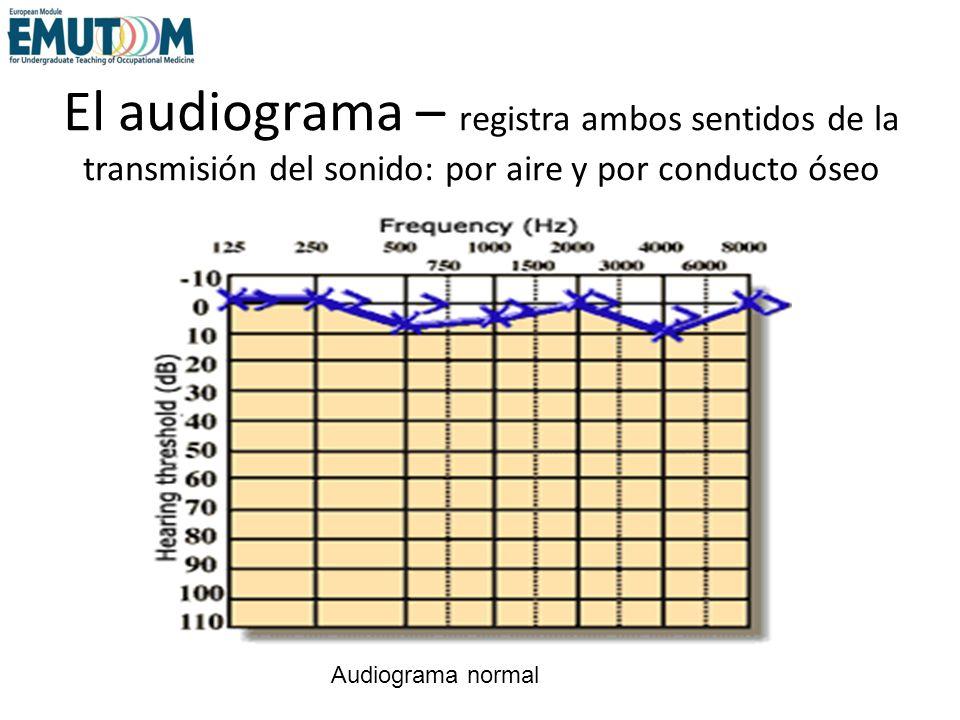 El audiograma – registra ambos sentidos de la transmisión del sonido: por aire y por conducto óseo