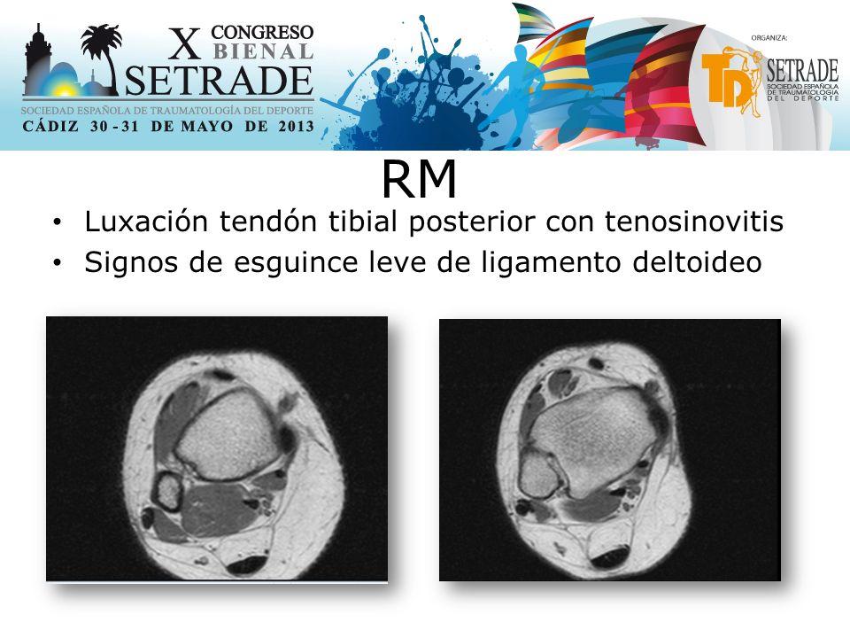 RM Luxación tendón tibial posterior con tenosinovitis
