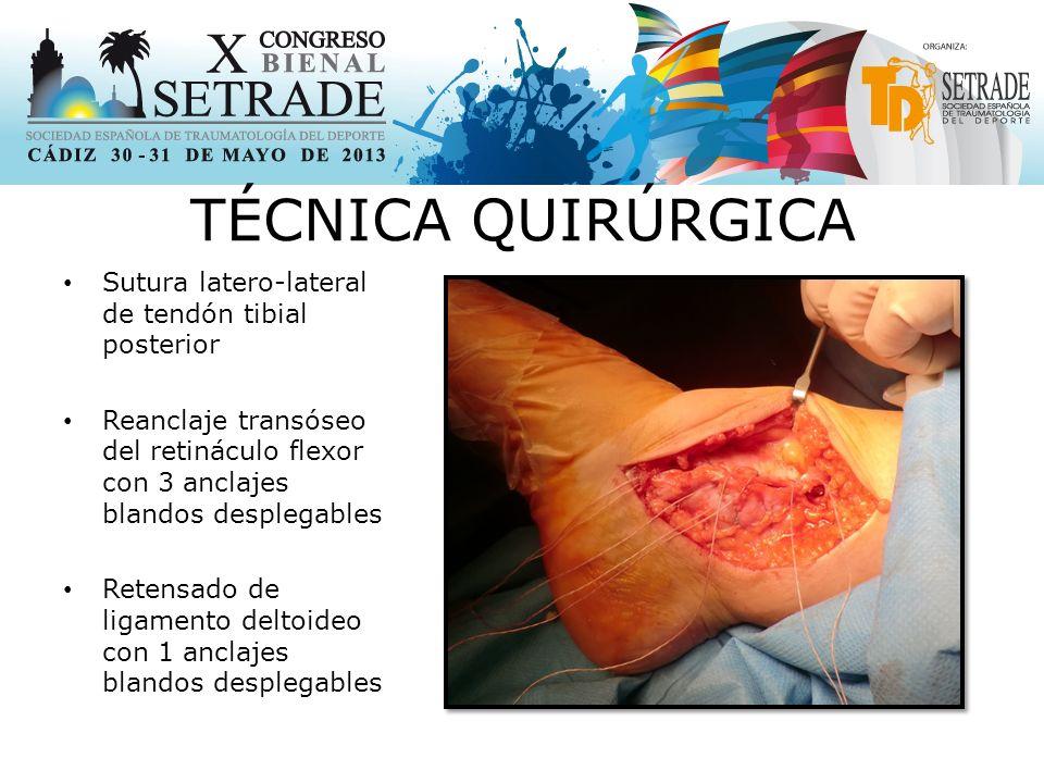 TÉCNICA QUIRÚRGICA Sutura latero-lateral de tendón tibial posterior