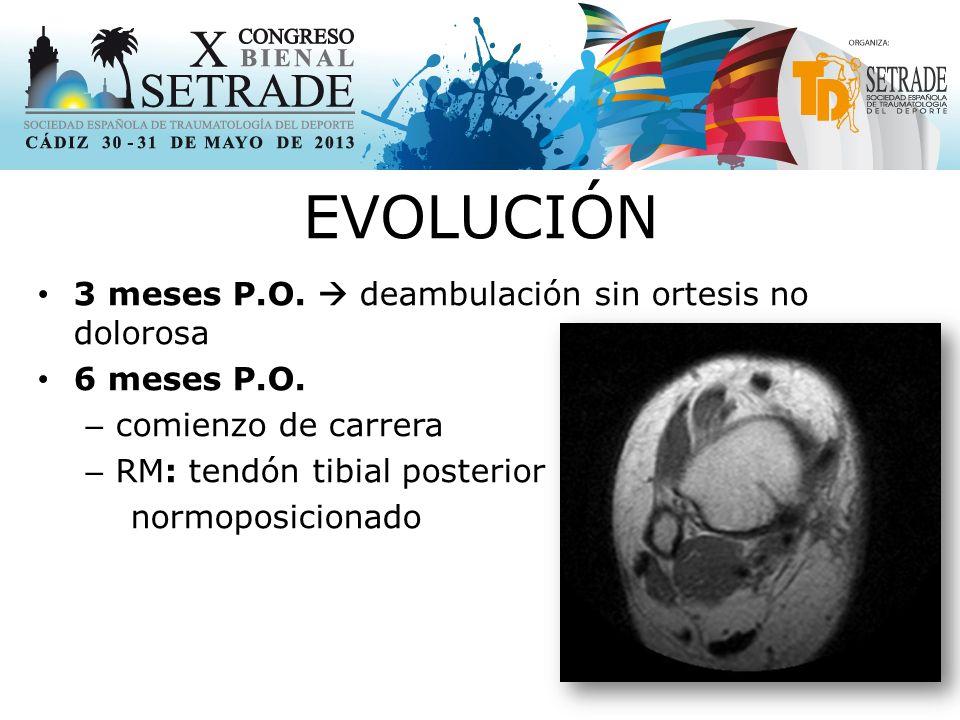 EVOLUCIÓN 3 meses P.O.  deambulación sin ortesis no dolorosa