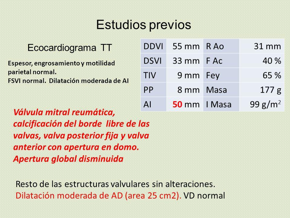 Estudios previos Ecocardiograma TT DDVI 55 mm R Ao 31 mm DSVI 33 mm