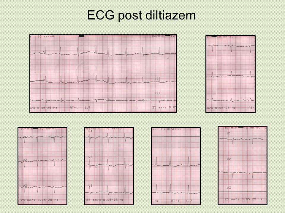 ECG post diltiazem