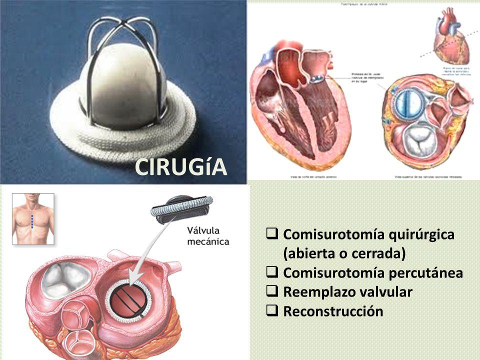 CIRUGíA Comisurotomía quirúrgica (abierta o cerrada)