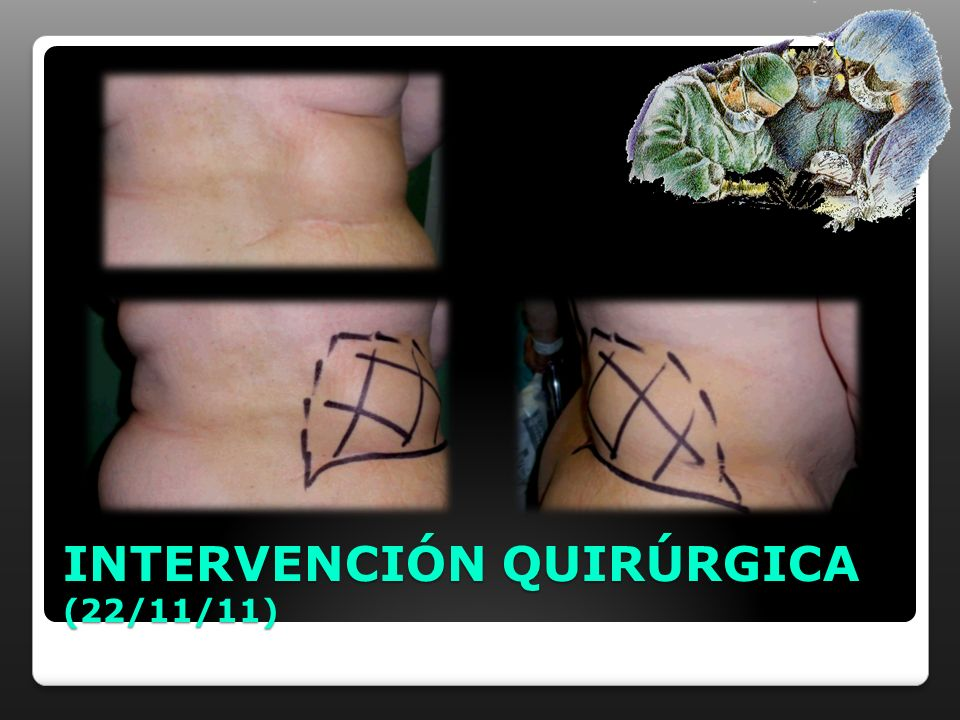 INTERVENCIÓN QUIRÚRGICA (22/11/11)