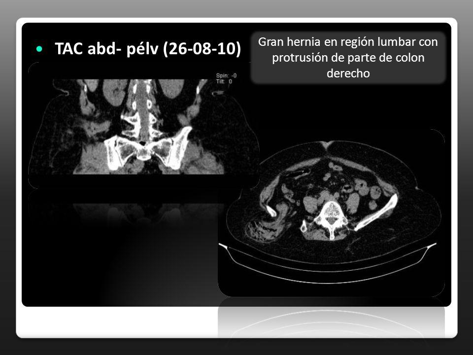 Gran hernia en región lumbar con protrusión de parte de colon derecho