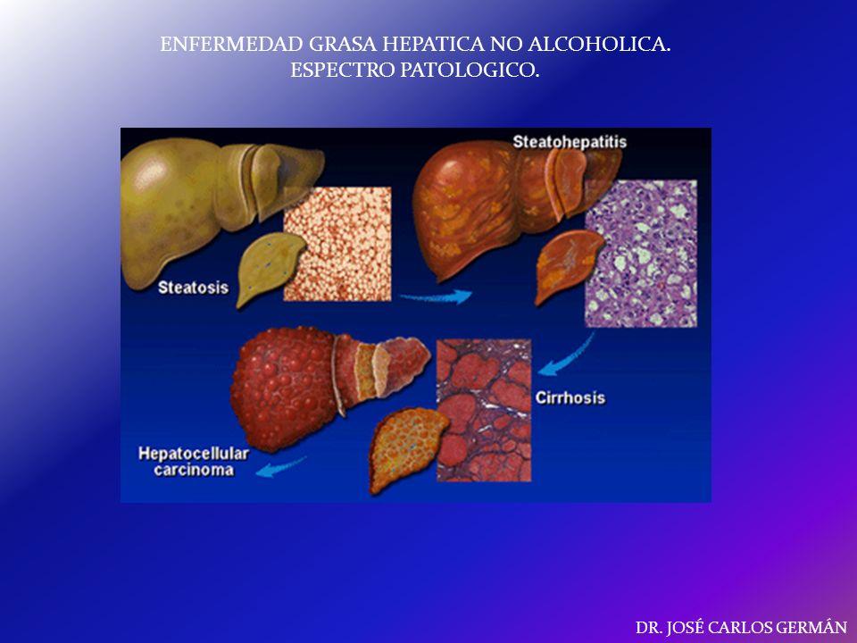 ENFERMEDAD GRASA HEPATICA NO ALCOHOLICA.