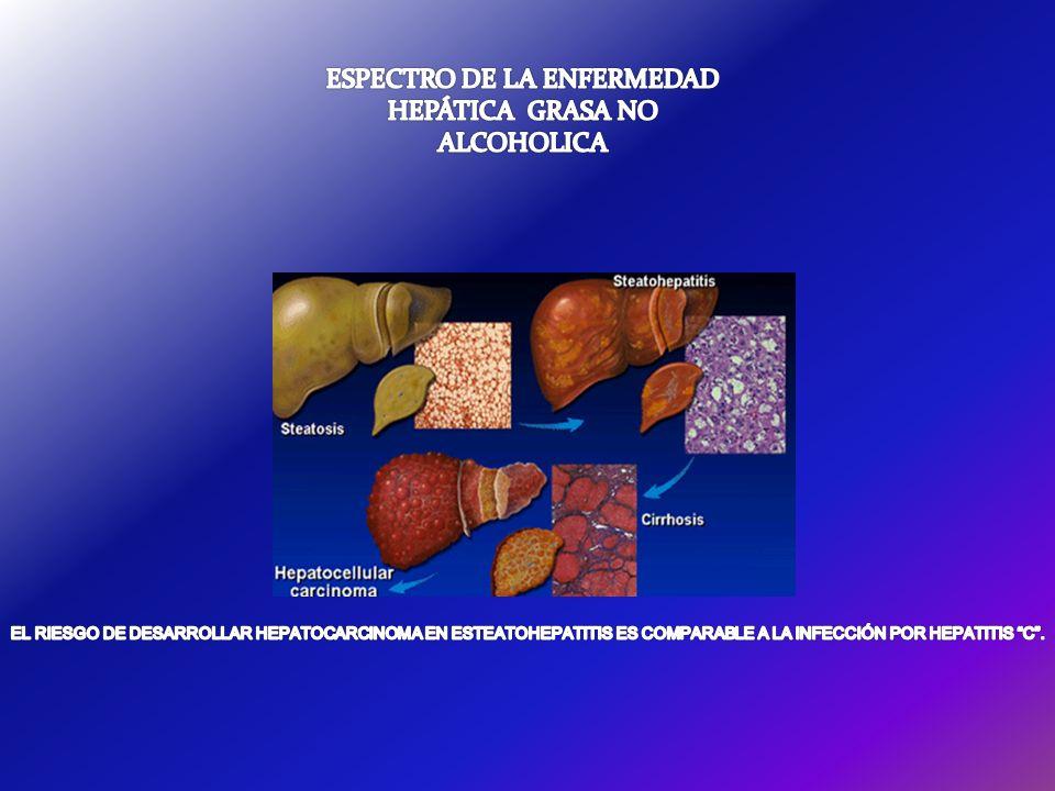 ESPECTRO DE LA ENFERMEDAD HEPÁTICA GRASA NO ALCOHOLICA