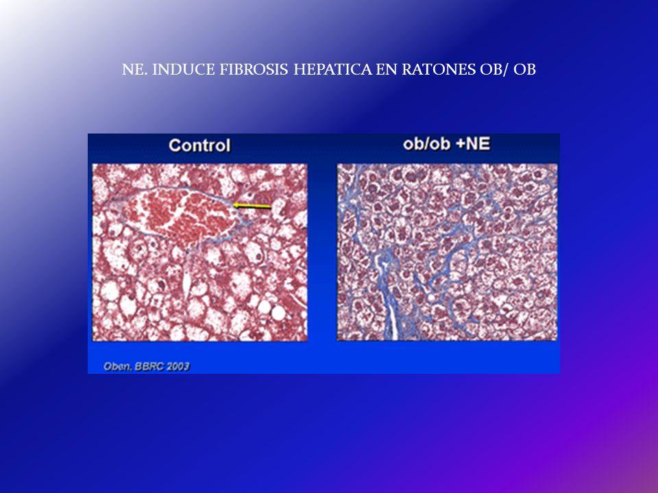 NE. INDUCE FIBROSIS HEPATICA EN RATONES OB/ OB