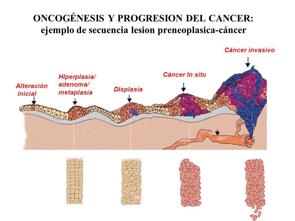 ONCOGÉNESIS Y PROGRESION DEL CANCER: ejemplo de secuencia lesion preneoplasica-cáncer