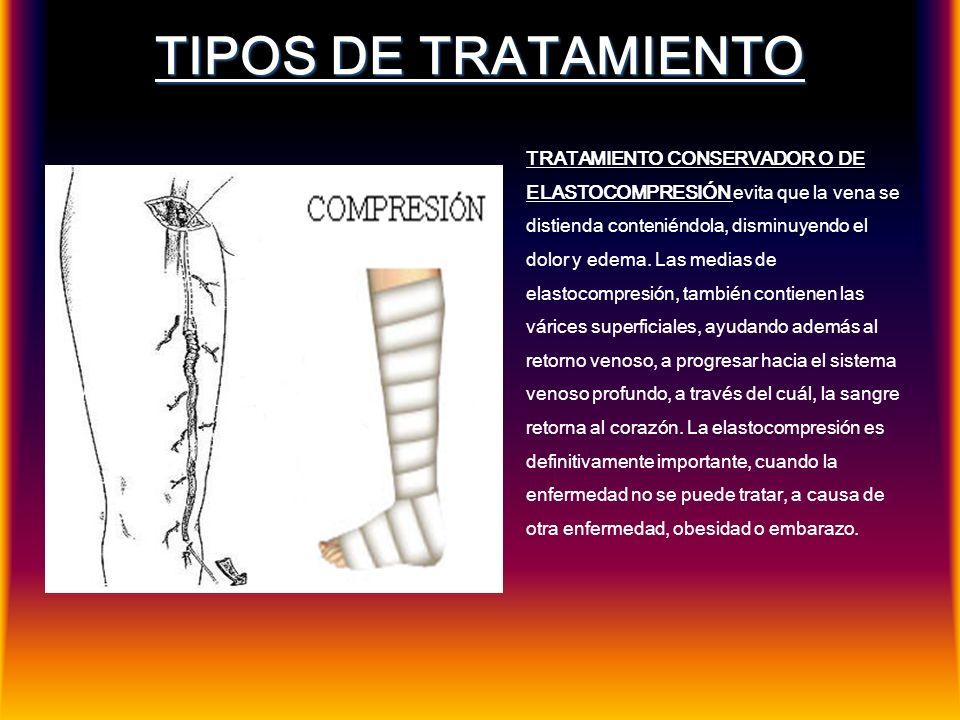 TIPOS DE TRATAMIENTO