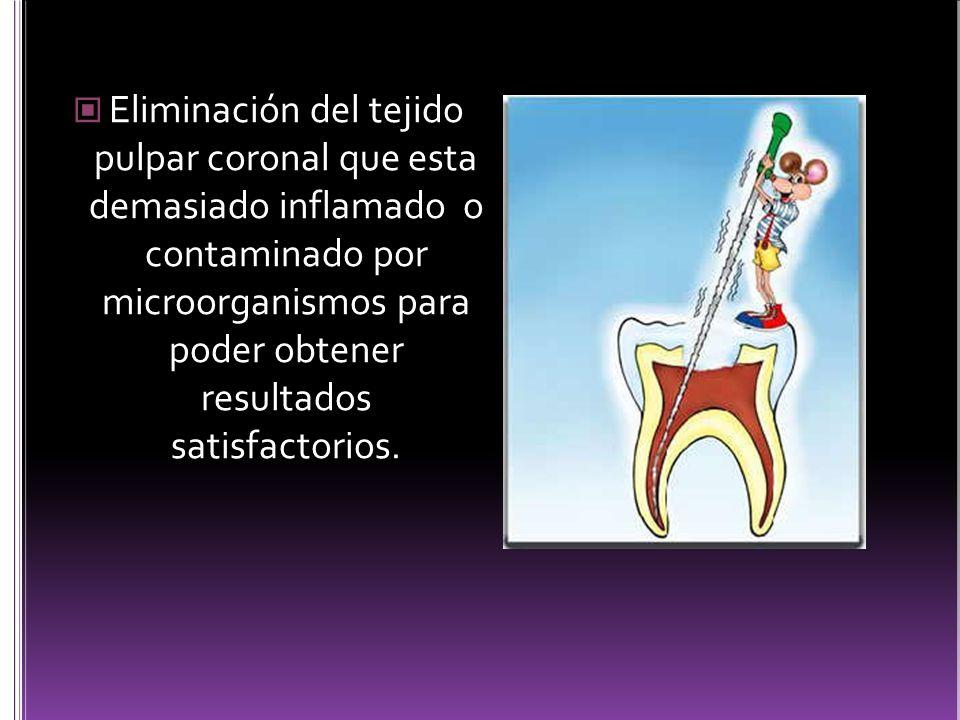Eliminación del tejido pulpar coronal que esta demasiado inflamado o contaminado por microorganismos para poder obtener resultados satisfactorios.