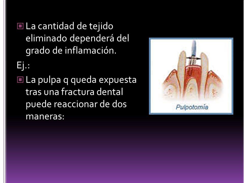 La cantidad de tejido eliminado dependerá del grado de inflamación.