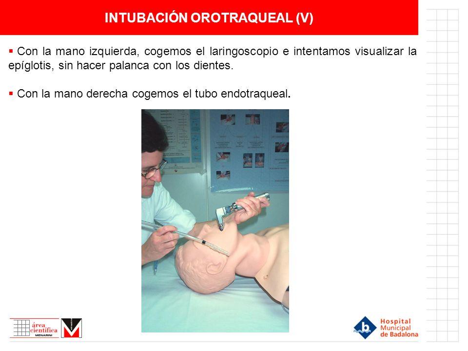 INTUBACIÓN OROTRAQUEAL (V)