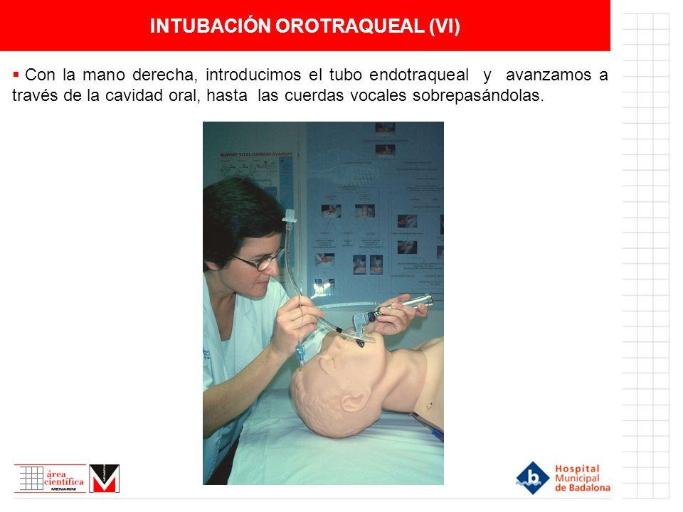 INTUBACIÓN OROTRAQUEAL (VI)
