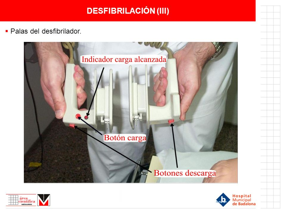DESFIBRILACIÓN (III) Palas del desfibrilador.