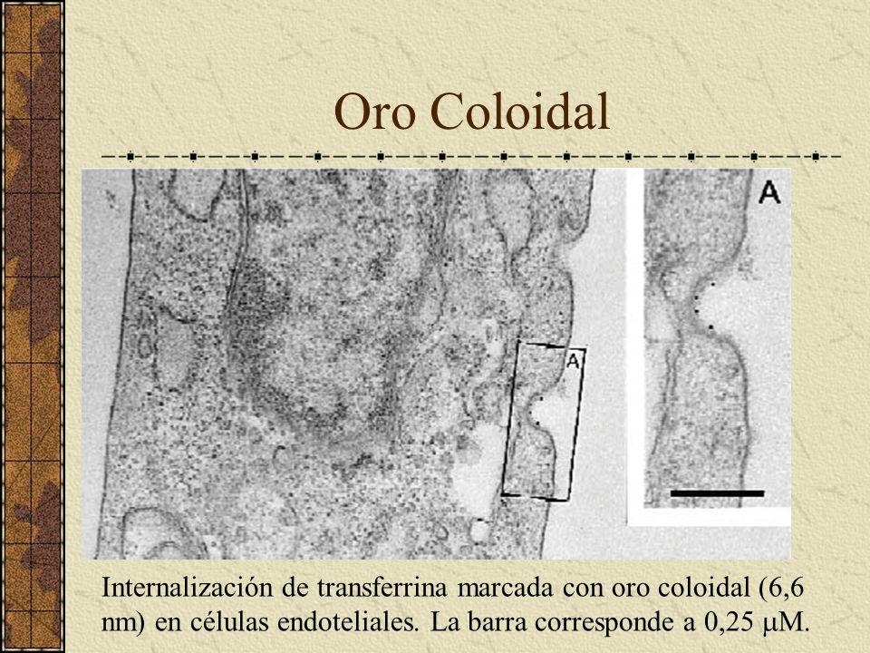 Oro Coloidal Internalización de transferrina marcada con oro coloidal (6,6 nm) en células endoteliales.