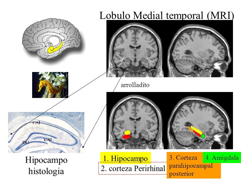 Lobulo Medial temporal (MRI)