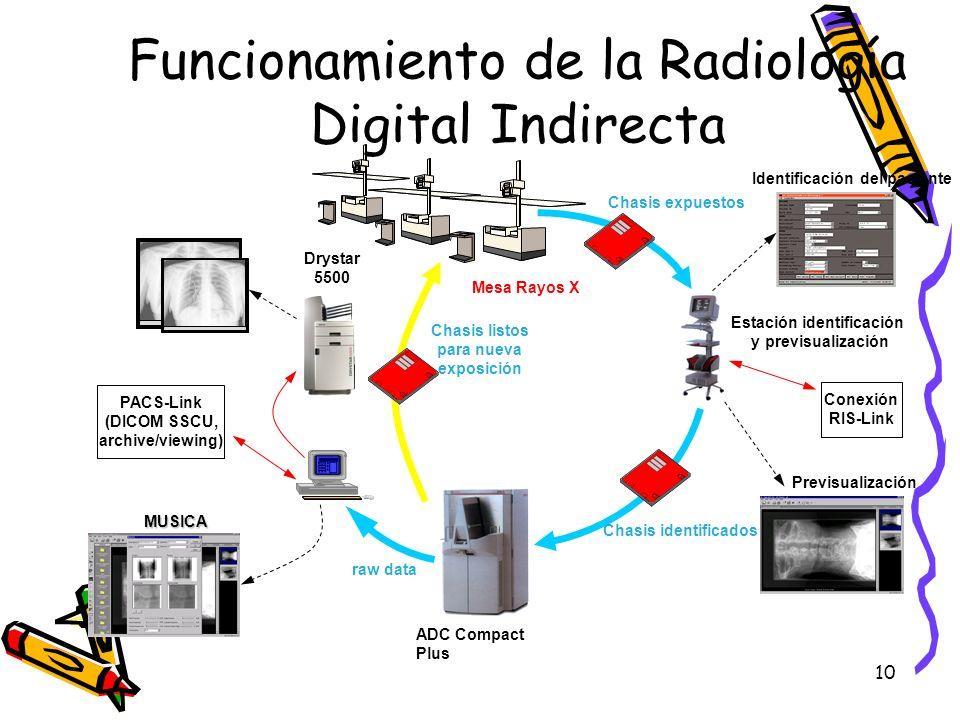Funcionamiento de la Radiología Digital Indirecta