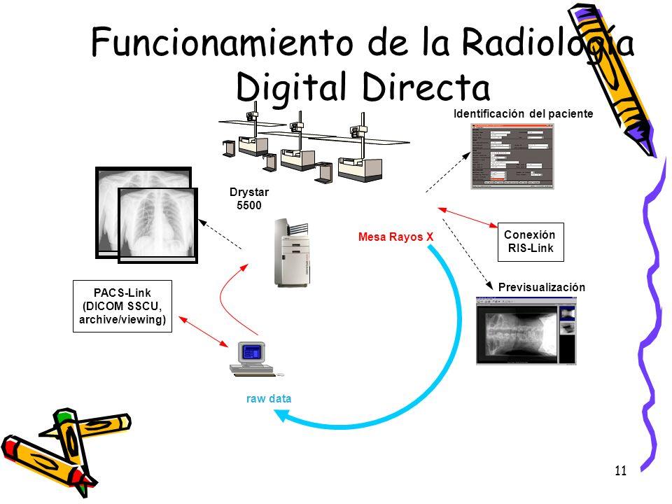Funcionamiento de la Radiología Digital Directa