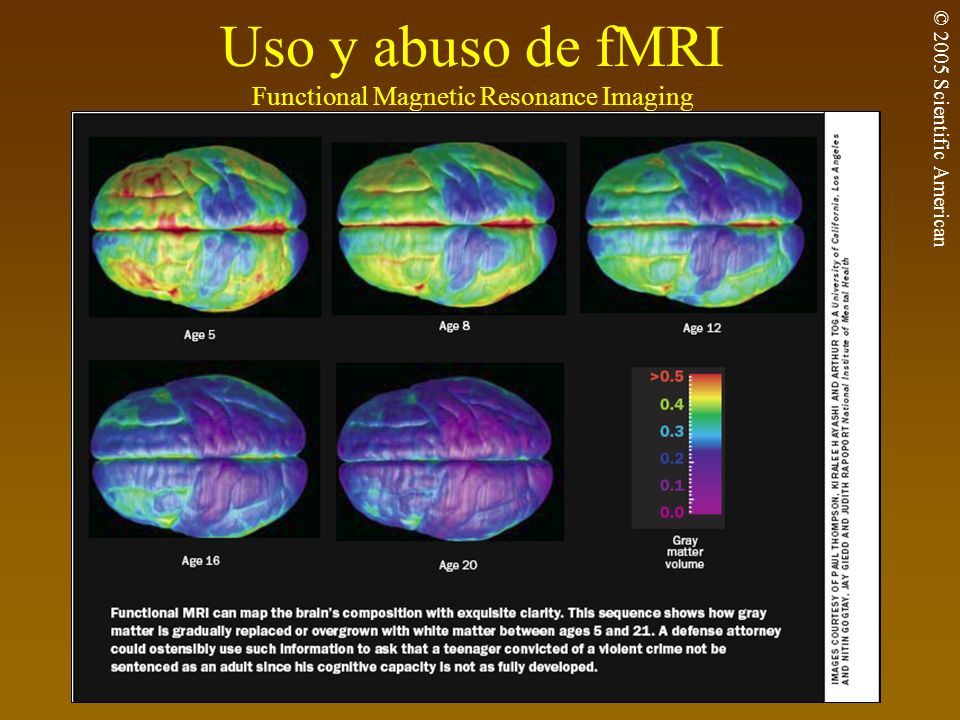 Uso y abuso de fMRI Functional Magnetic Resonance Imaging