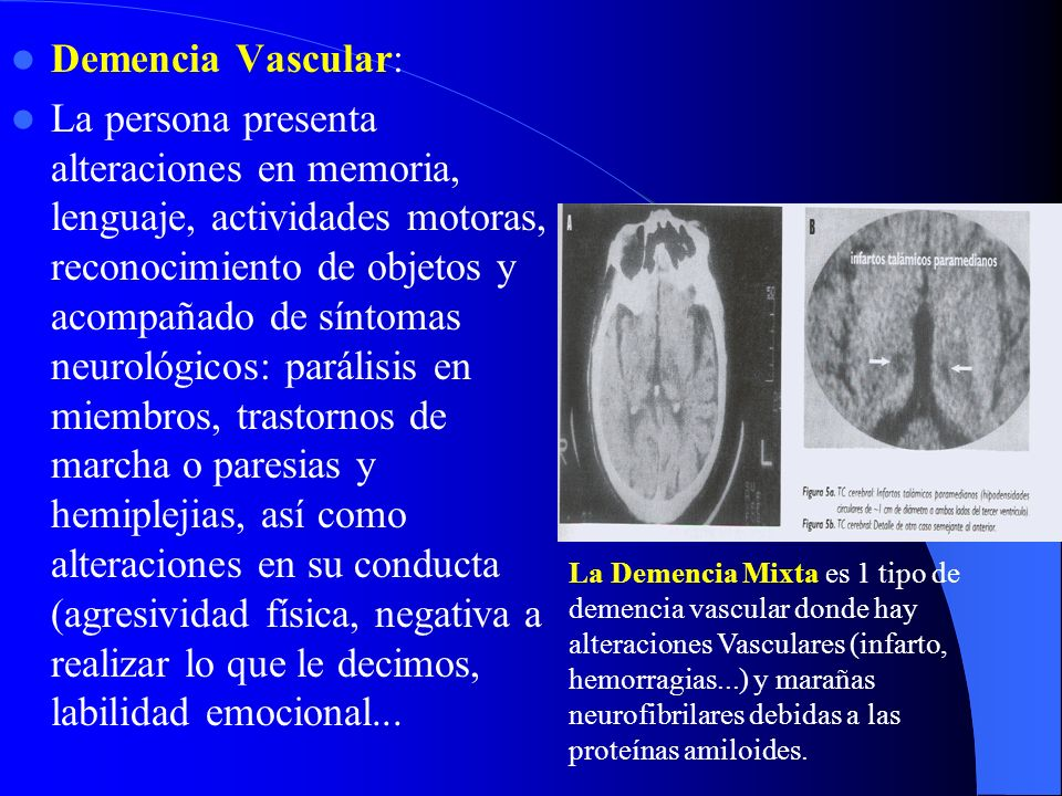 Demencia Vascular: