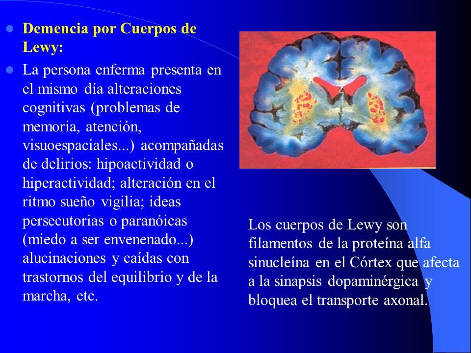 Demencia por Cuerpos de Lewy: