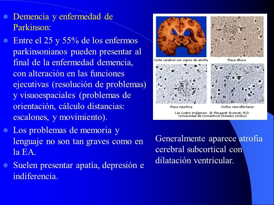 Demencia y enfermedad de Parkinson: