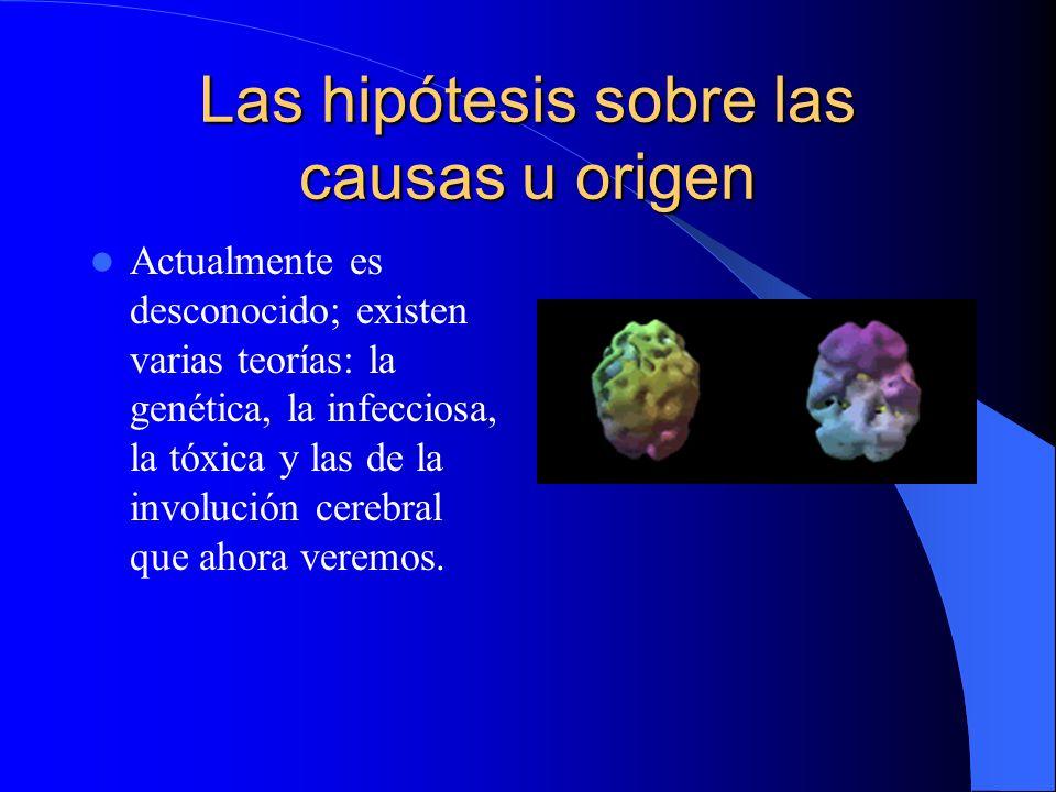 Las hipótesis sobre las causas u origen