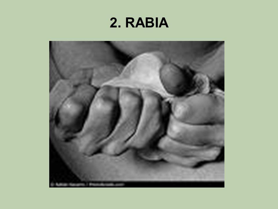 2. RABIA
