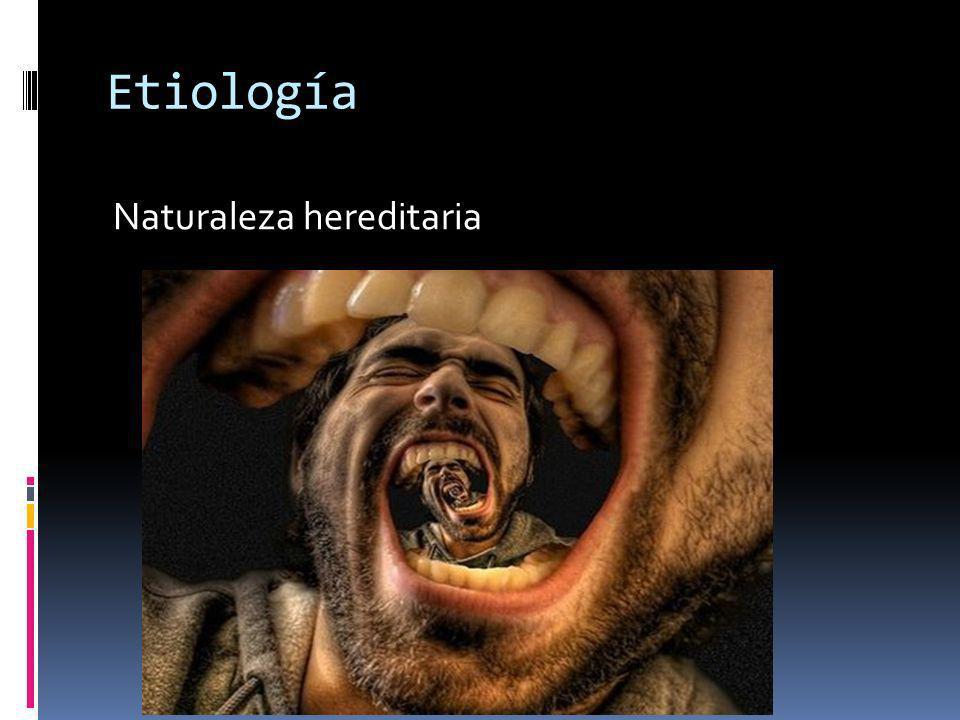 Etiología Naturaleza hereditaria