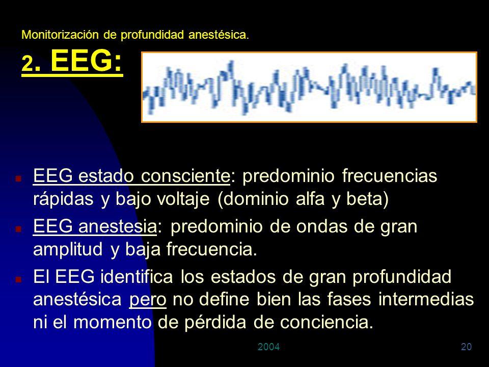 29/03/2017 Monitorización de profundidad anestésica. 2. EEG: