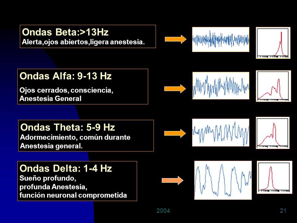 Ondas Beta:>13Hz Ondas Alfa: 9-13 Hz Ondas Theta: 5-9 Hz