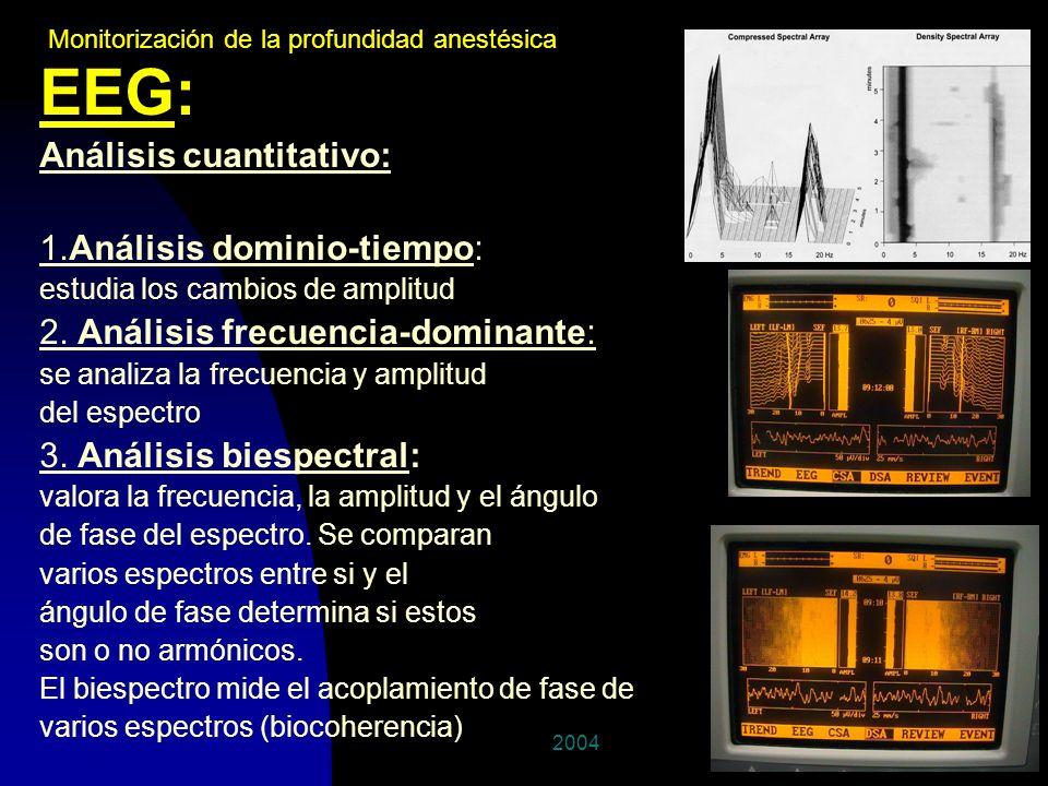 EEG: Análisis cuantitativo: 1.Análisis dominio-tiempo: