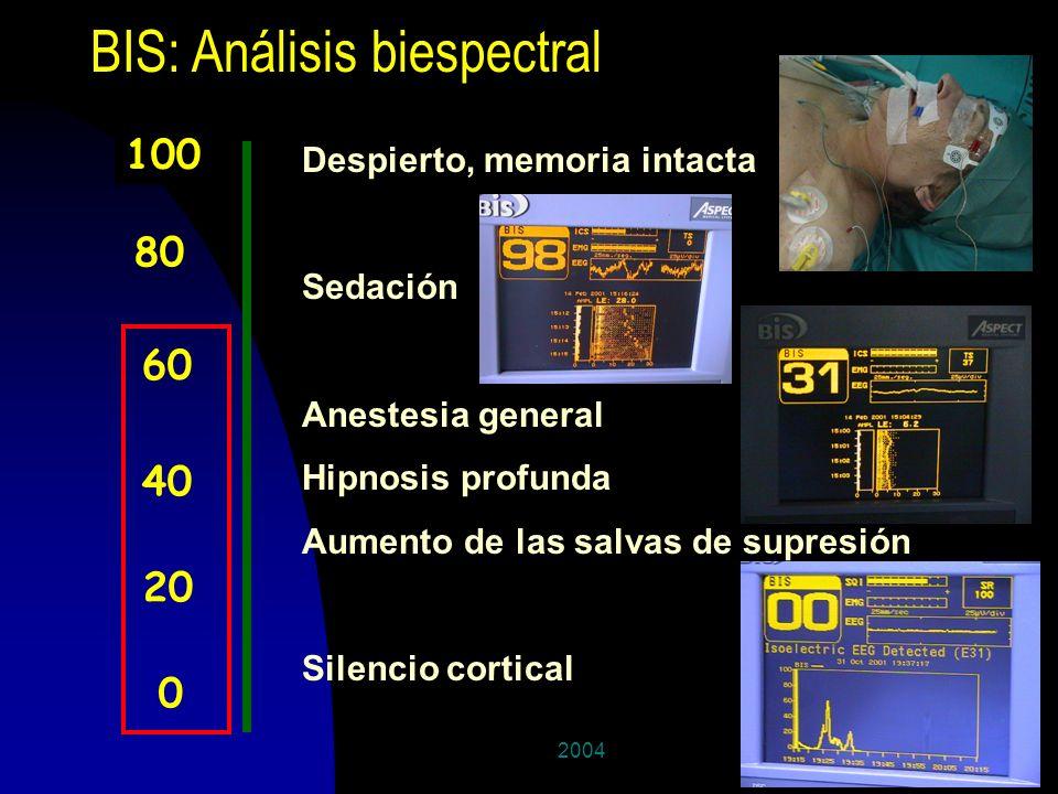 BIS: Análisis biespectral
