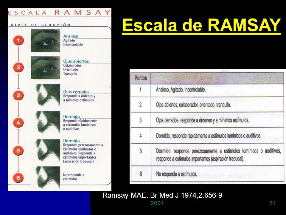 Escala de RAMSAY Ramsay MAE. Br Med J 1974;2:656-9 2004