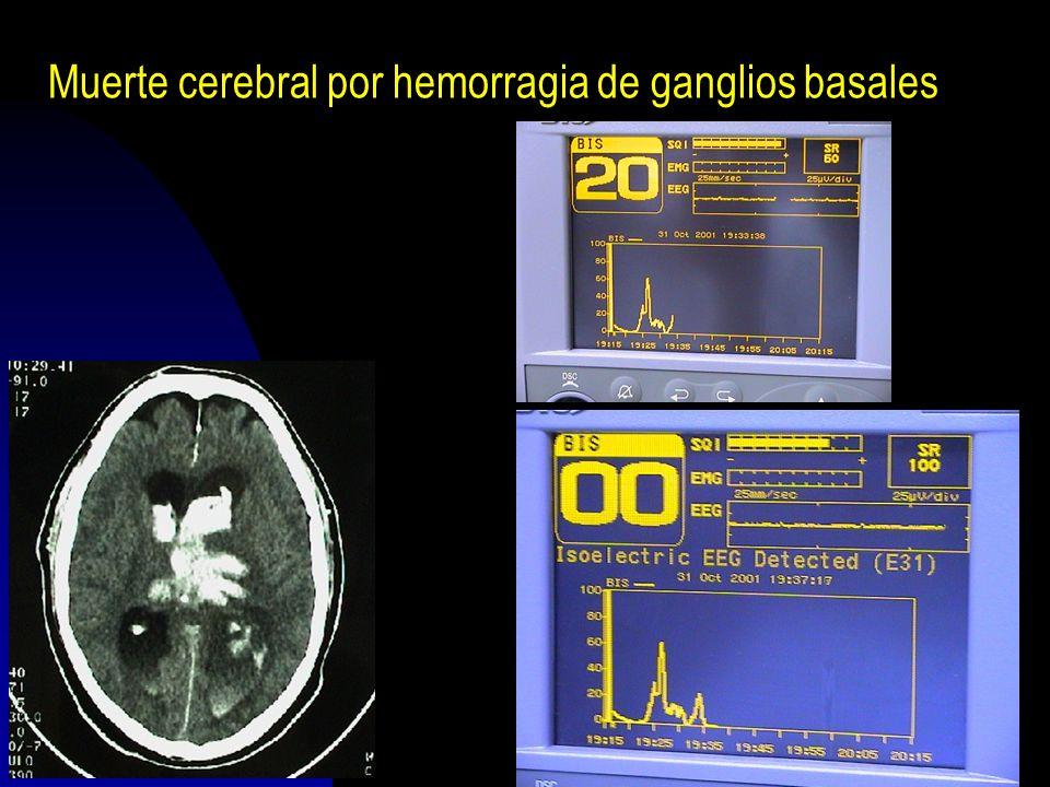 Muerte cerebral por hemorragia de ganglios basales