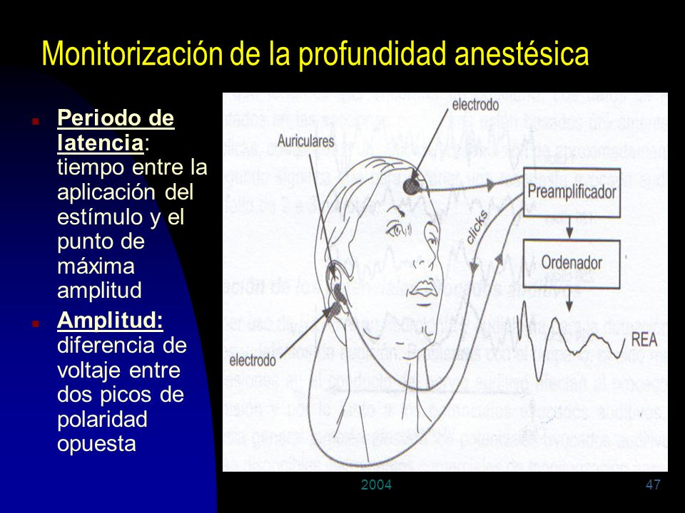Monitorización de la profundidad anestésica
