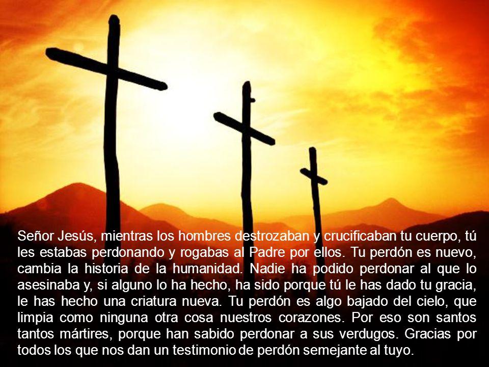 Señor Jesús, mientras los hombres destrozaban y crucificaban tu cuerpo, tú les estabas perdonando y rogabas al Padre por ellos.