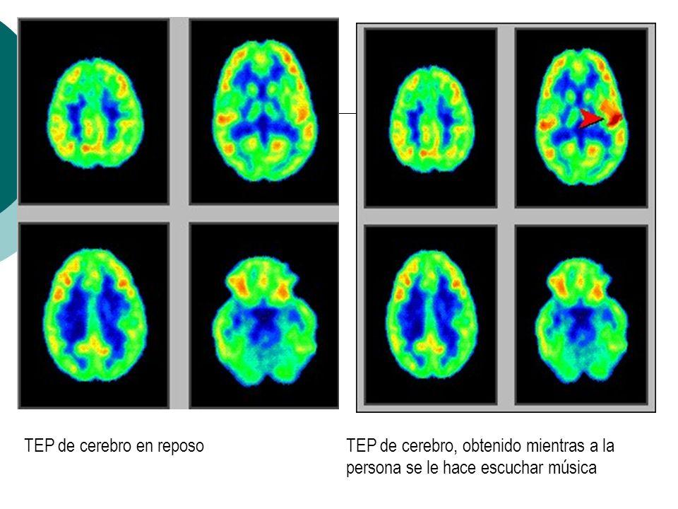TEP de cerebro en reposo