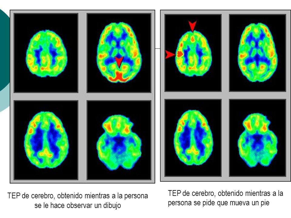 TEP de cerebro, obtenido mientras a la persona se pide que mueva un pie