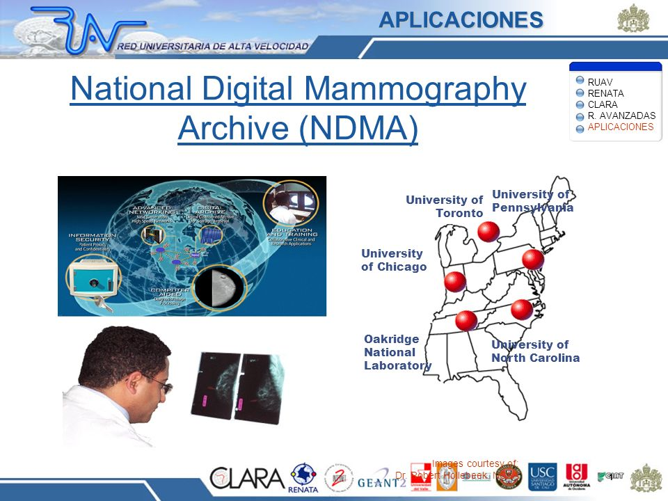 National Digital Mammography Archive (NDMA)