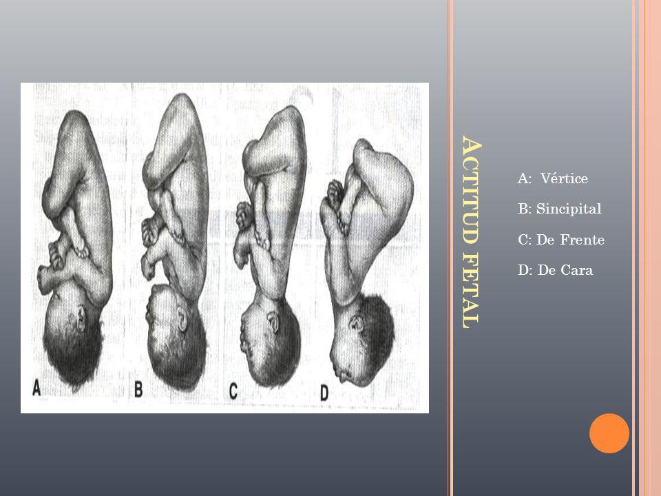 A: Vértice B: Sincipital C: De Frente D: De Cara Actitud fetal