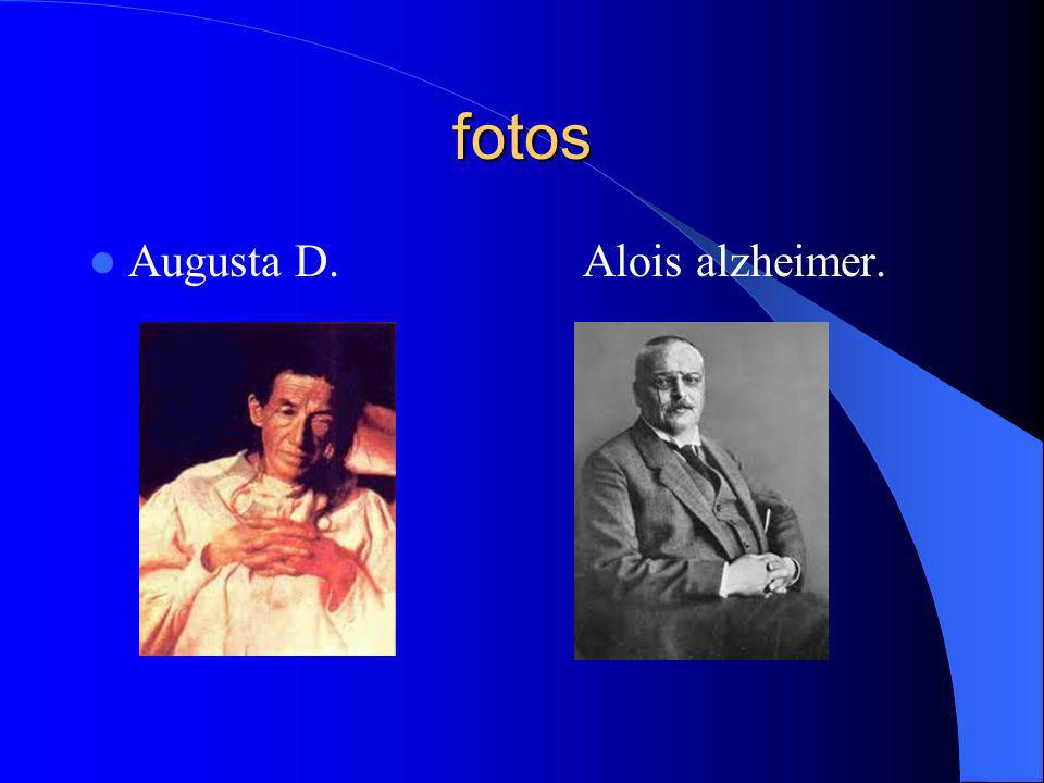 fotos Augusta D. Alois alzheimer.