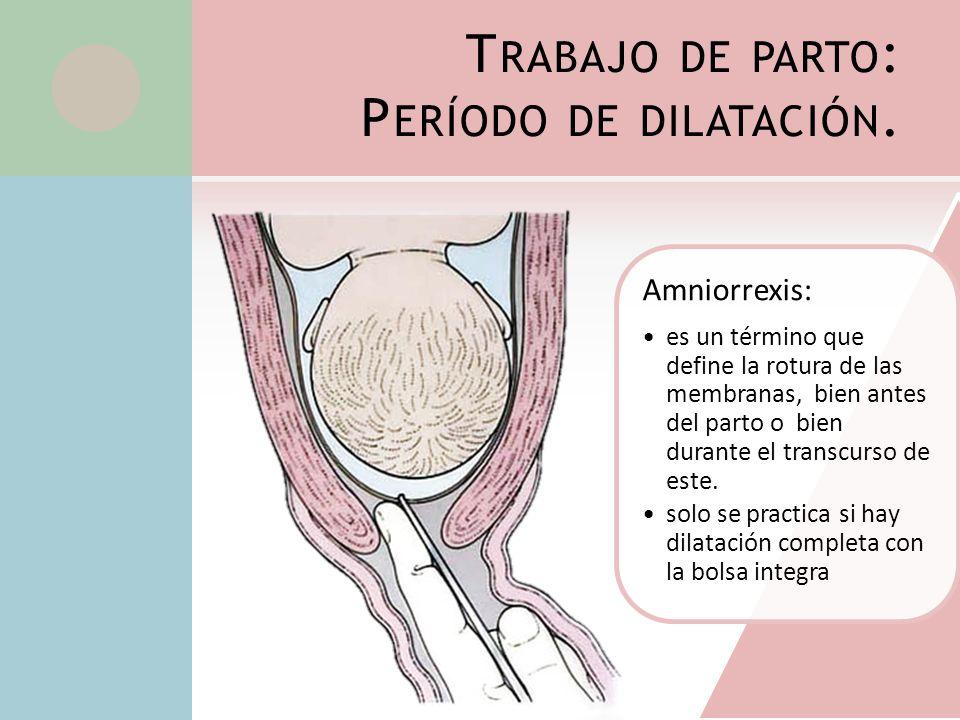 Trabajo de parto: Período de dilatación.