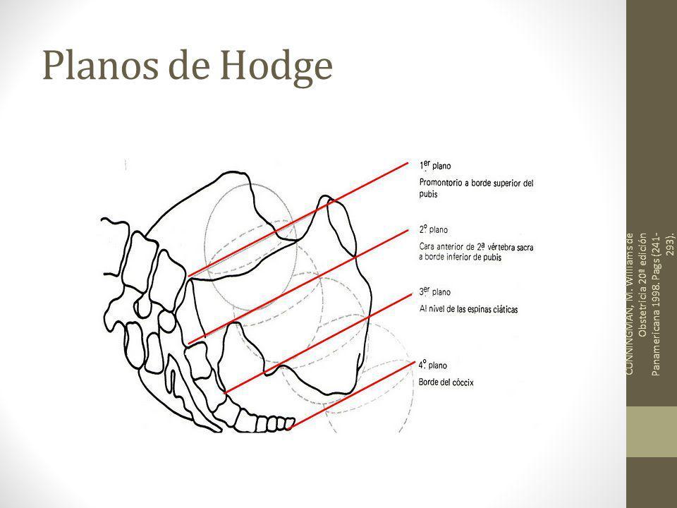 Planos de Hodge CUNNINGMAN, M. Williams de Obstetricia 20ª edición Panamericana 1998.