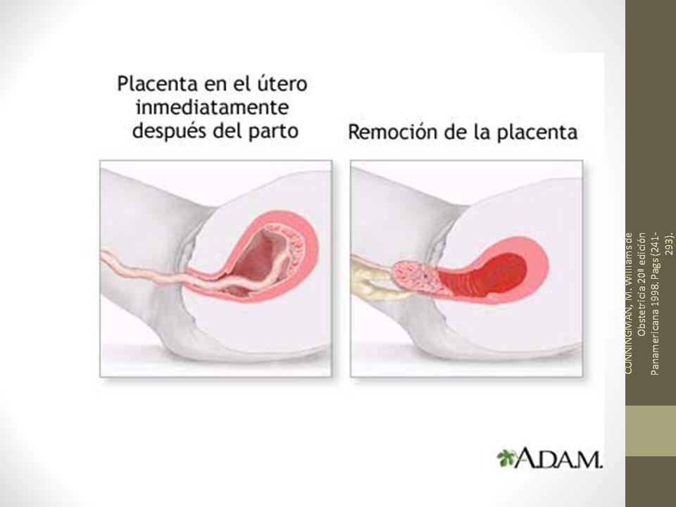 CUNNINGMAN, M. Williams de Obstetricia 20ª edición Panamericana 1998