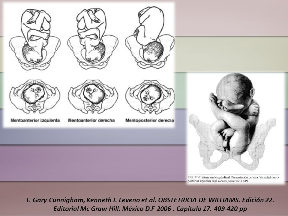F. Gary Cunnigham, Kenneth J. Leveno et al. OBSTETRICIA DE WILLIAMS